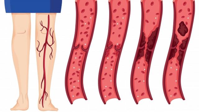 Thrombose: Unterschätzte Gefahr