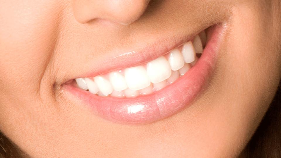 Zähne bleichen – Bleaching