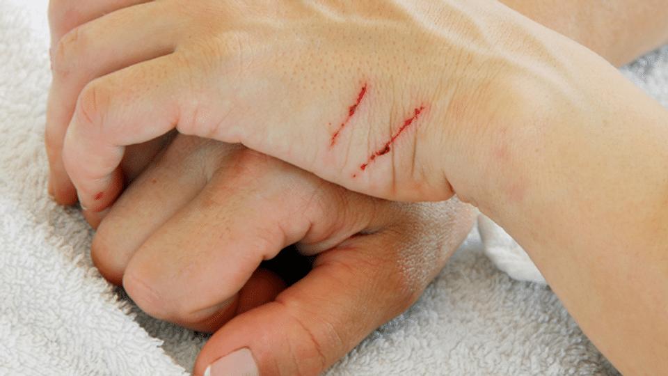 Blutvergiftung – eine unterschätzte Gefahr